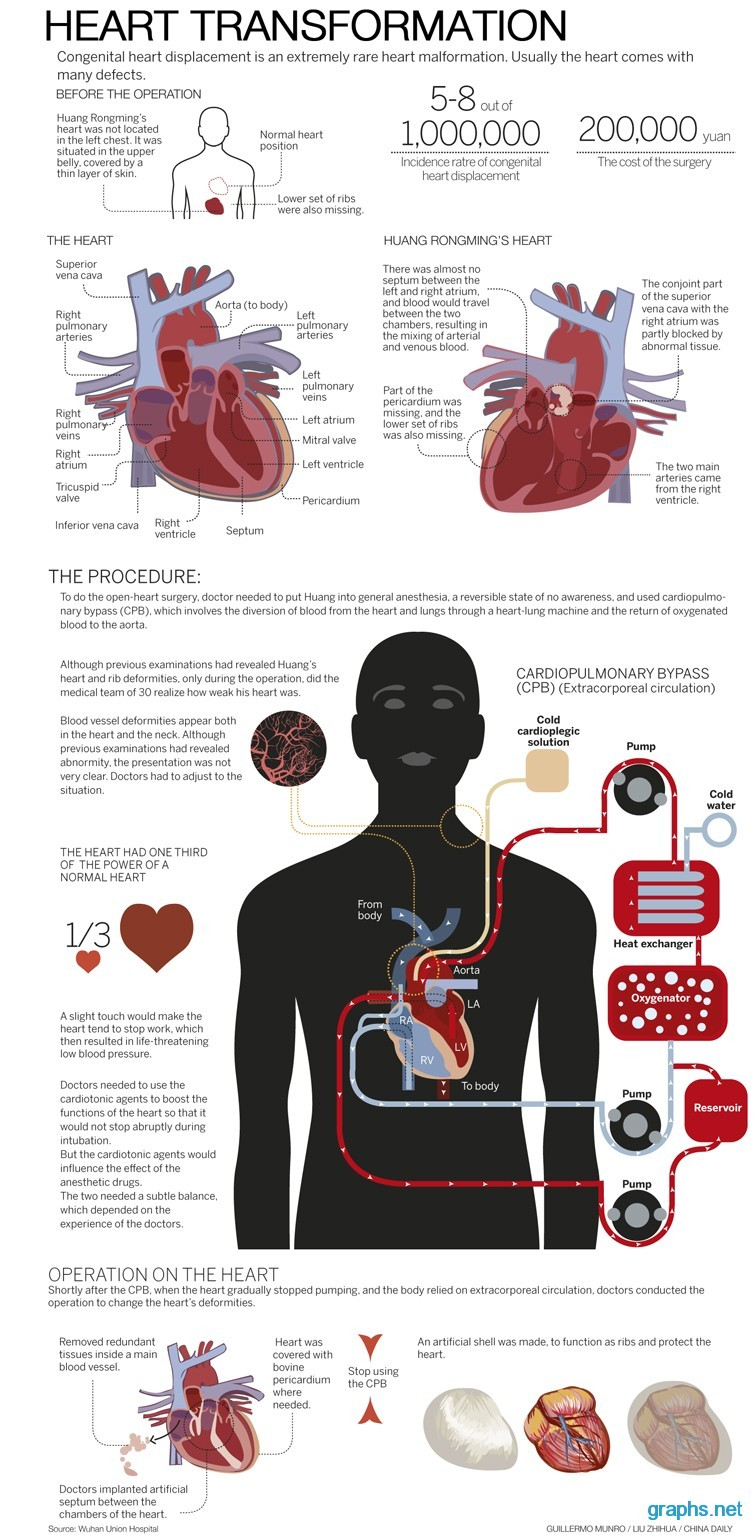 heart transformation procedure