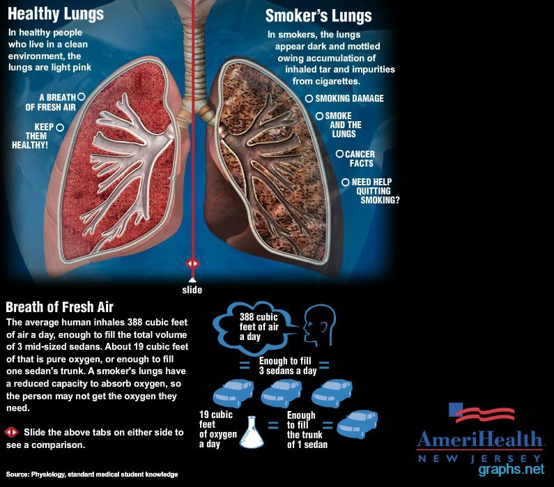 Lungs of a Smoker vs. Non Smoker