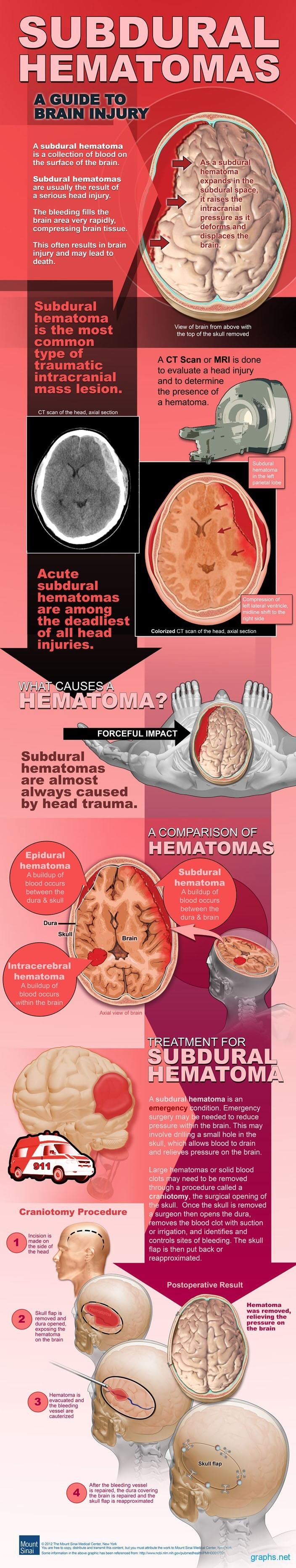 Subdural Hematoma Causes and Treatment