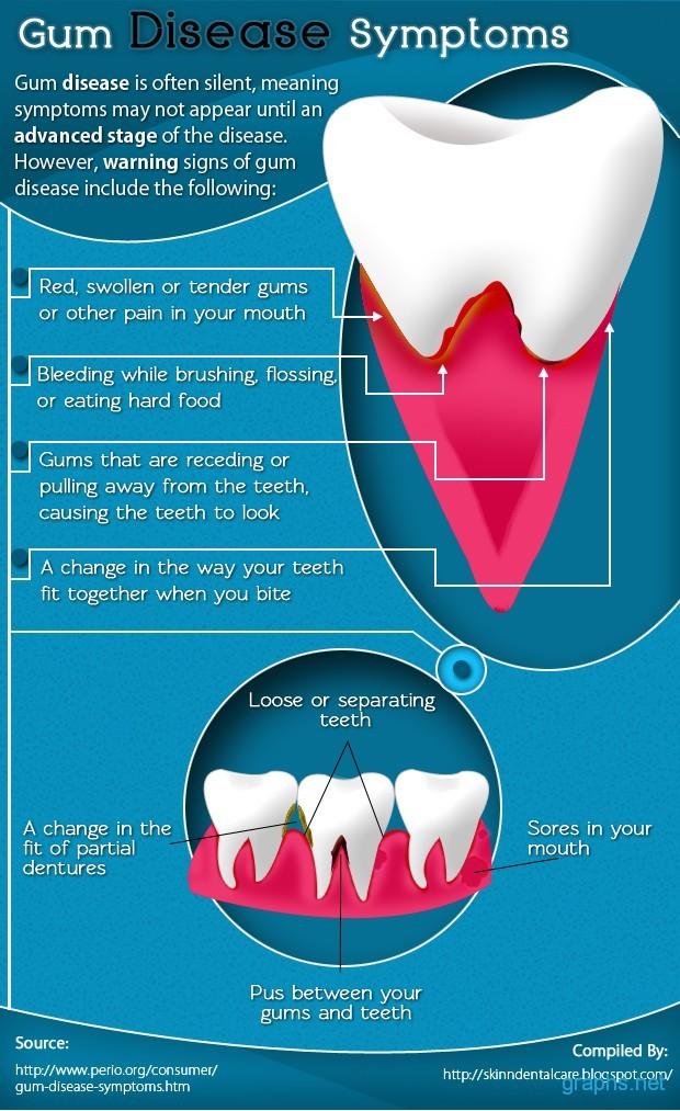 Gum Disease and its Symptoms