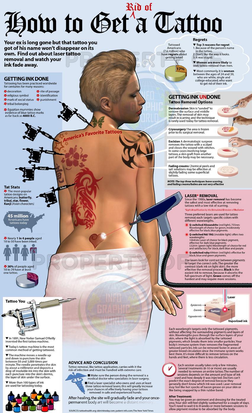 erasing tattoo is tough than inking it