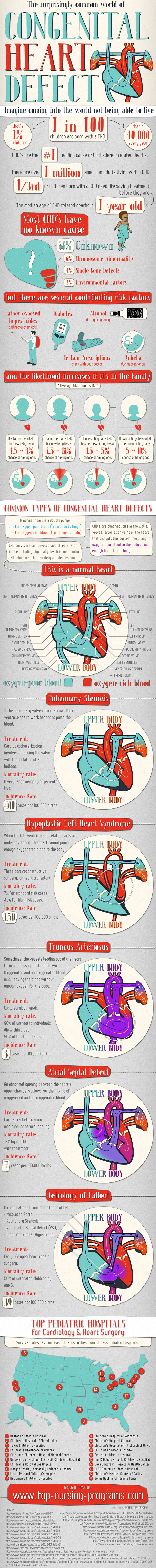 10 congenital-heart-defect