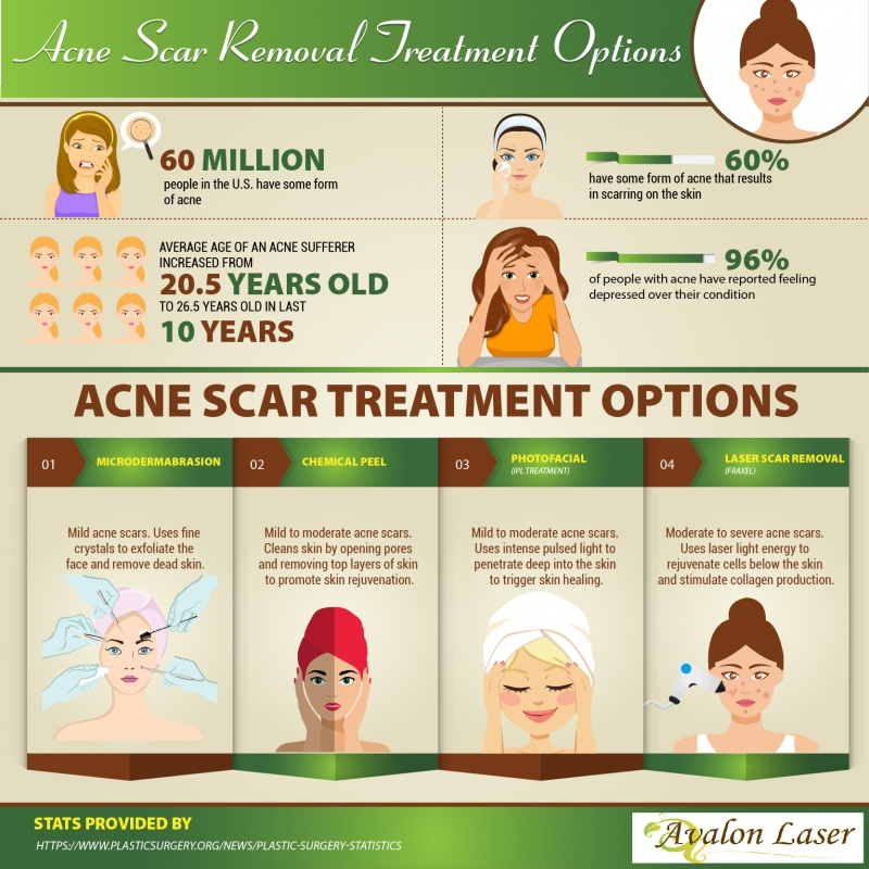 avalon laser acne scar removal infograph