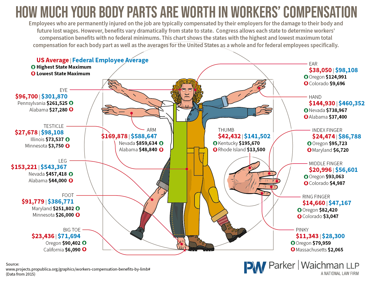 How Much Your Body Parts Are Worth In Workers' Compensation