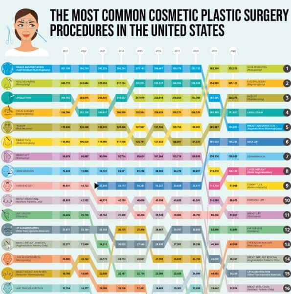 The Most Common Plastic Surgery Procedures in the United States infographic